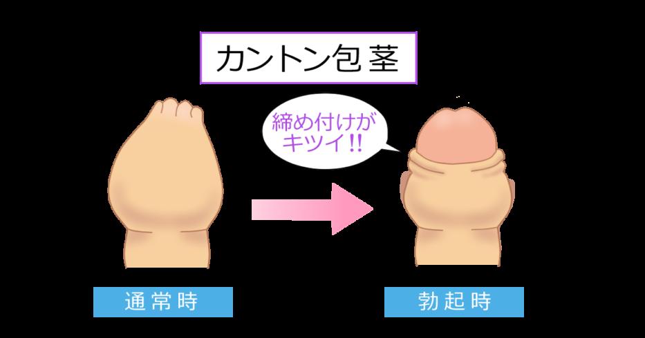 剥がし 包皮 方 癒着 【高校生向け】包皮の癒着の剥がし方。危険性や注意点を徹底解説